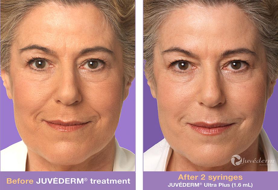 Juvederm Lip Augmentation Richmond Midlothian Va
